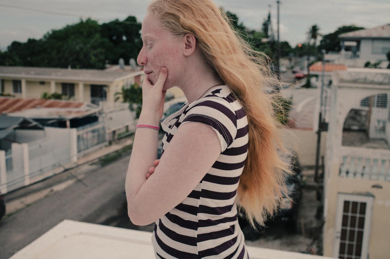 adriana-monsalve-albinism-2