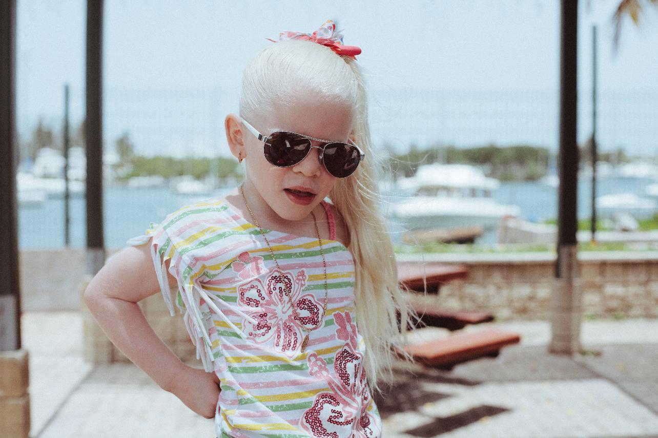 Adriana Monsalve Albinism