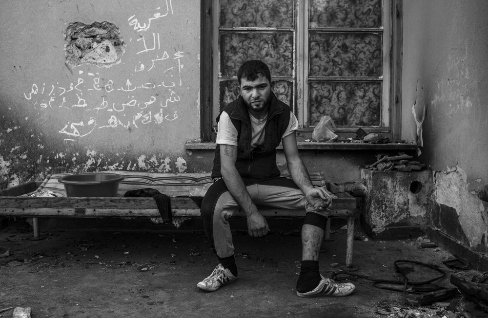 Ali sits on the roof of the Train station building in Idomeni, showing where he was shot in the leg by the Islamic State in Raqqa, Syria.