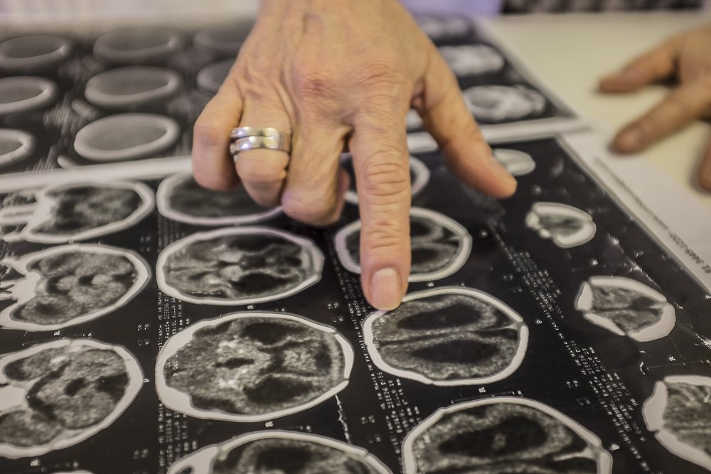 Angela Rocha, 67, infectologist at the Oswaldo Cruz hospital in Recife, Pernambuco, showing a brain tomography of an infant with microcephaly