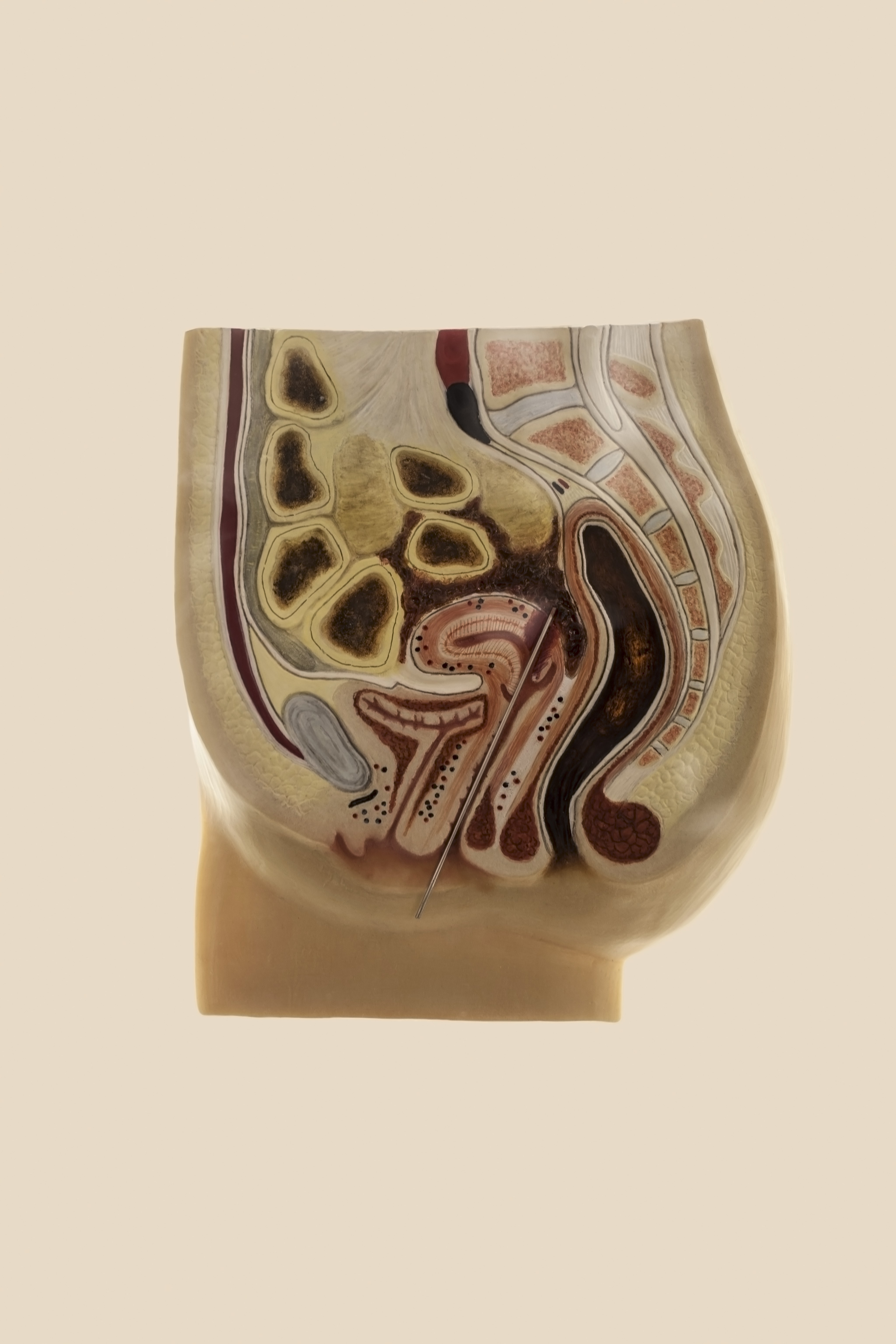 3D cross-section illustrating a knitting-needle abortion.