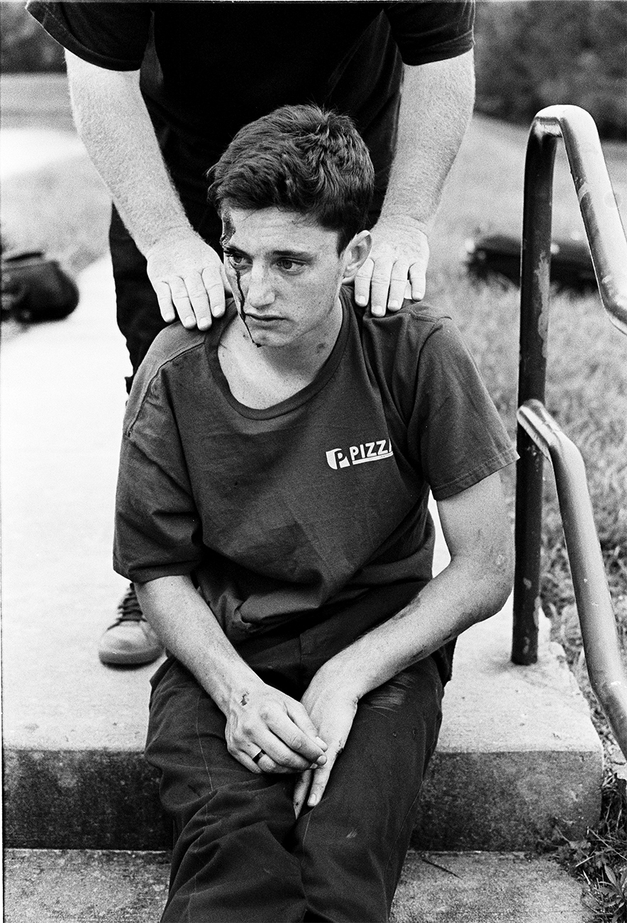 A young man sits on stairs with a bloodied head