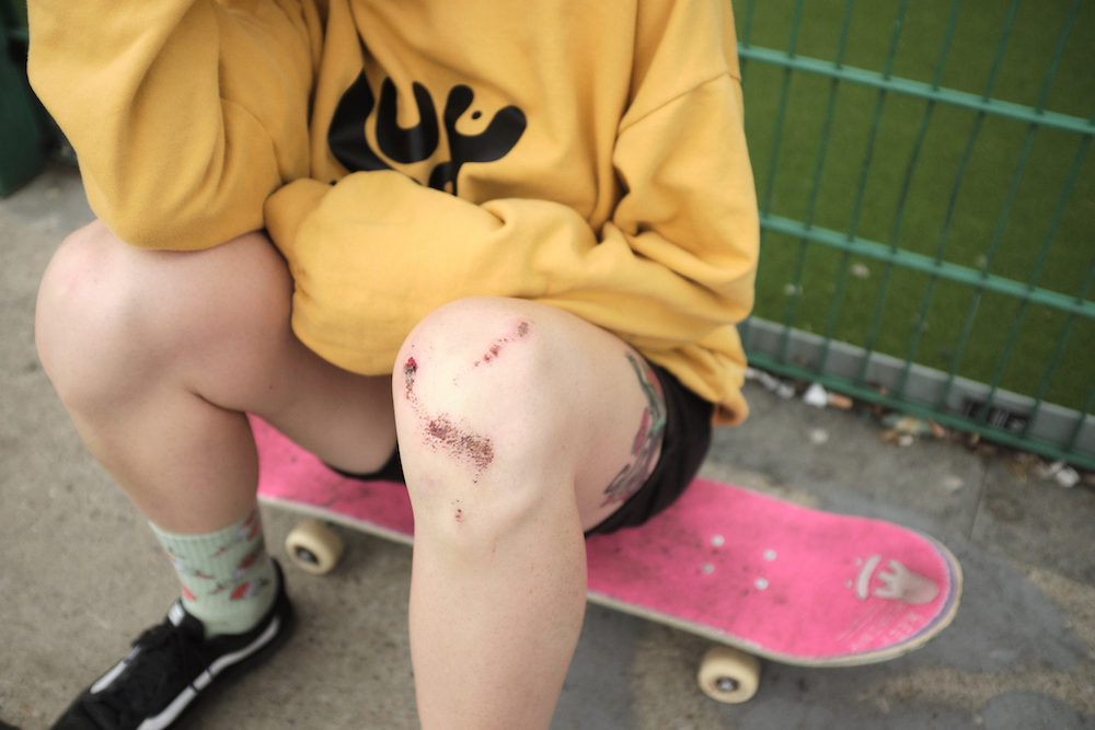 A skater sat on their skateboard in a yellow jumper, their grazed and bloodied knees on display